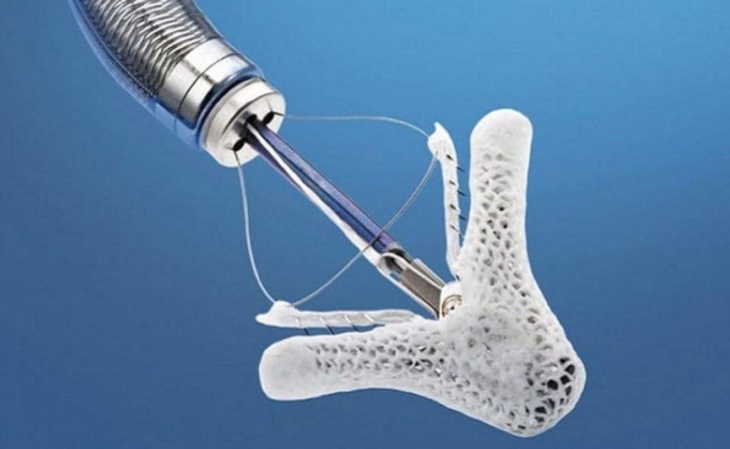Abbott's MitraClip G4 Receives the US FDA's Approval for the Treatment of Mitral Regurgitation